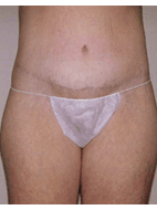 After weight loss surgery before & after photo