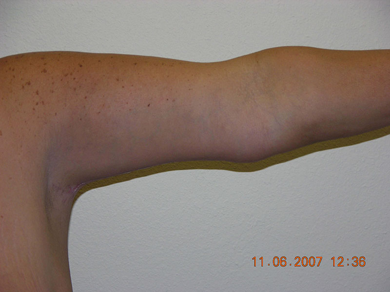 Arm lift before & after photo