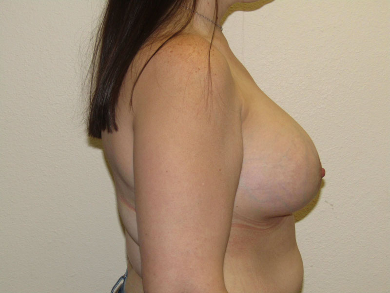 Breast augmentation lift before & after photo