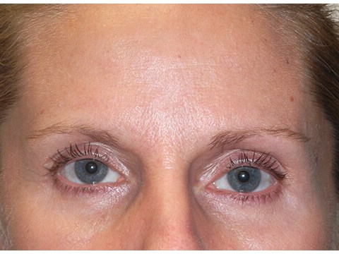 Eyelid lift before & after photo