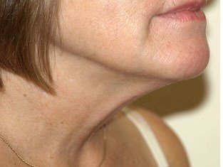 Smartlipo before & after photo