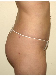 Vaserlipo before & after photo