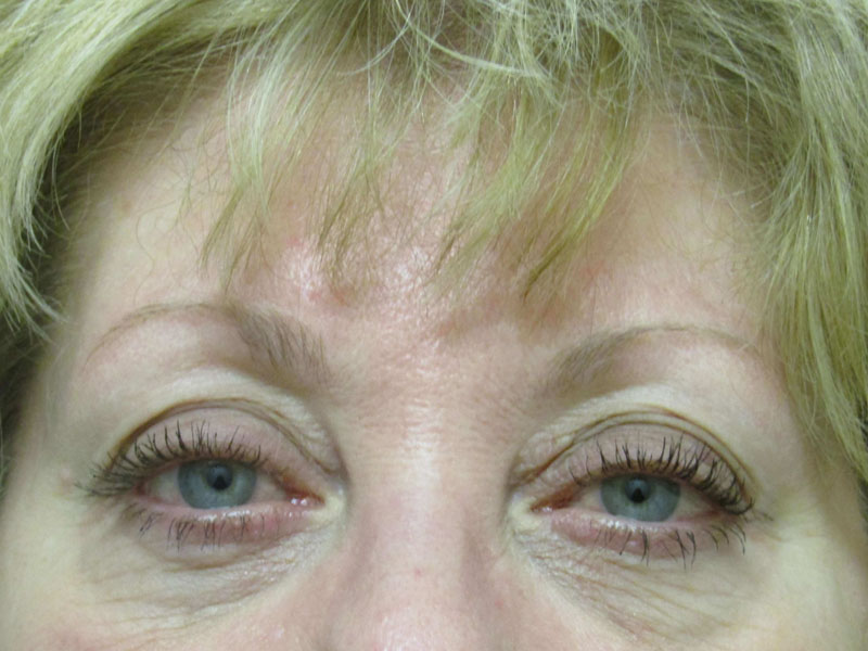 Juvederm before & after photo